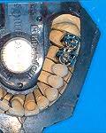 Festsitzender Zahnersatz am Zahnmodell